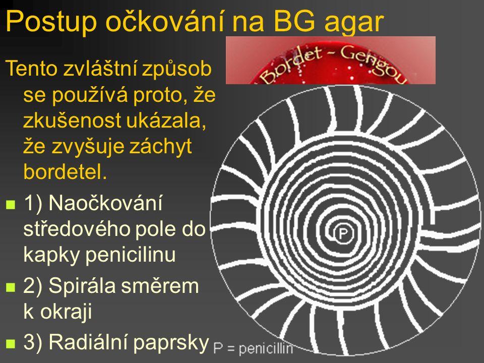 Postup očkování na BG agar