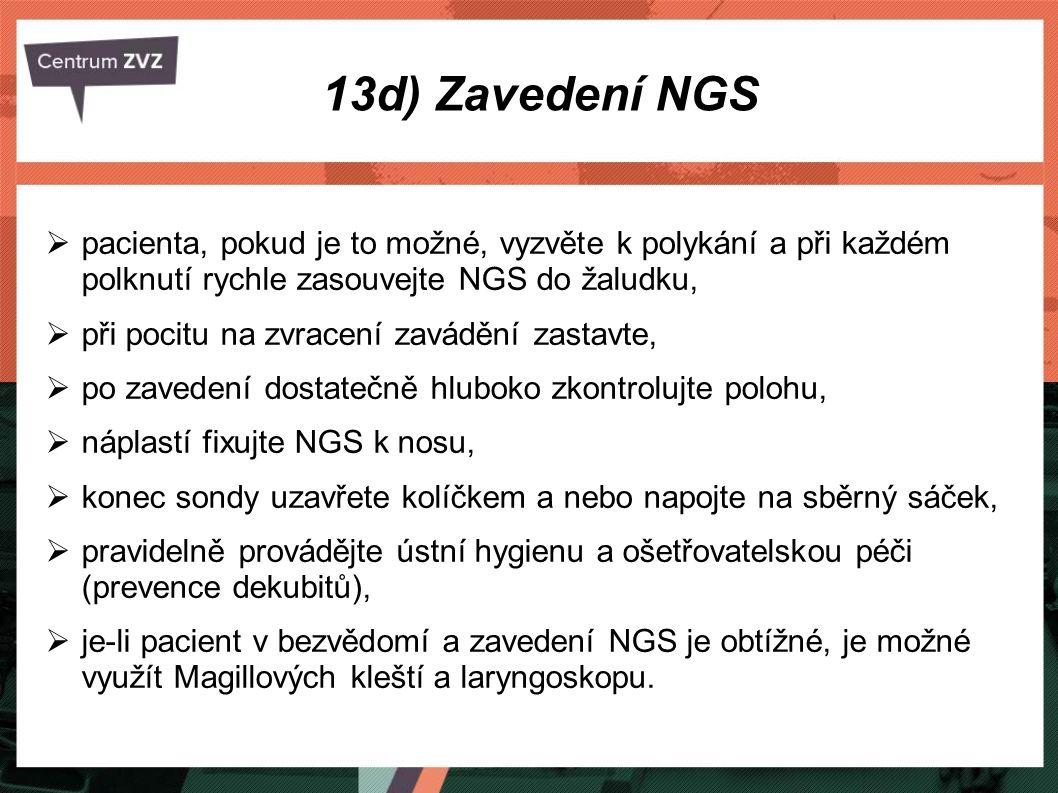 13d) Zavedení NGS pacienta, pokud je to možné, vyzvěte k polykání a při každém polknutí rychle zasouvejte NGS do žaludku,