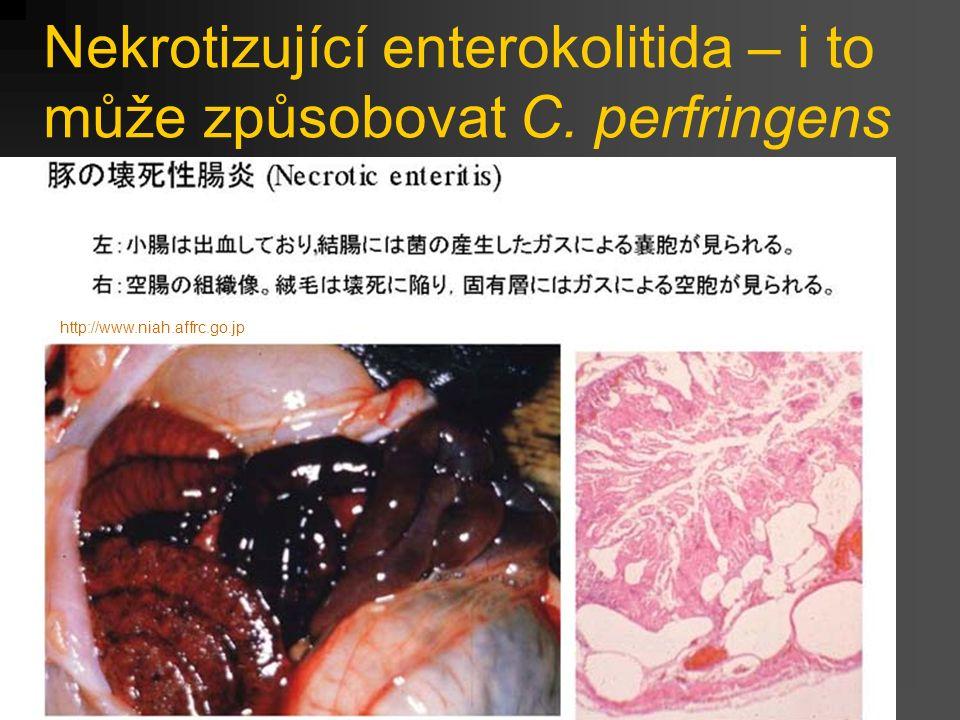 Nekrotizující enterokolitida – i to může způsobovat C. perfringens