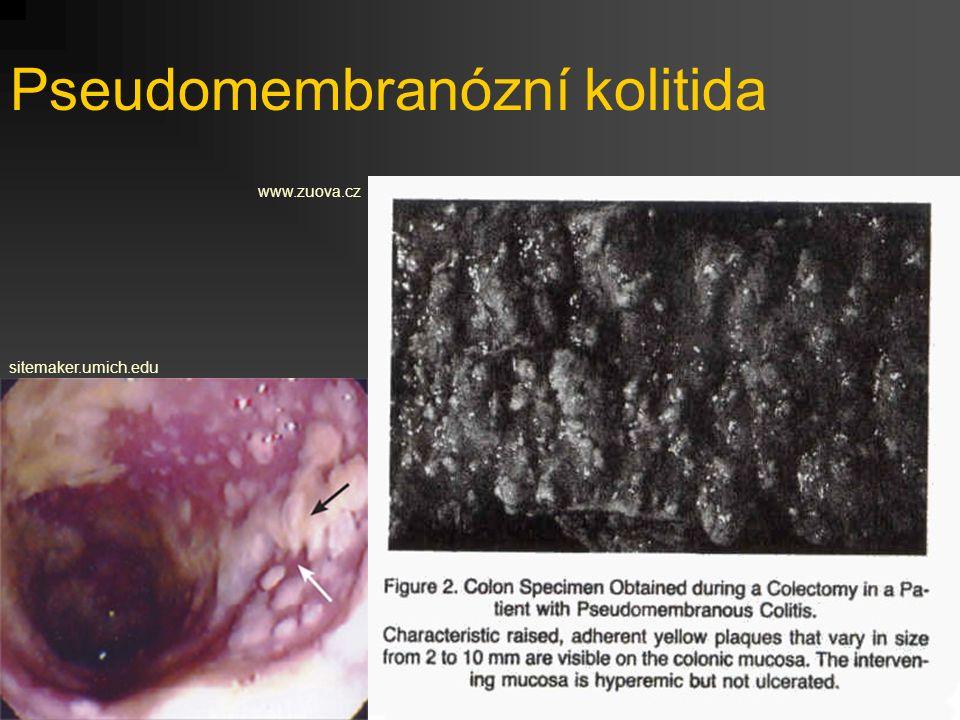 Pseudomembranózní kolitida
