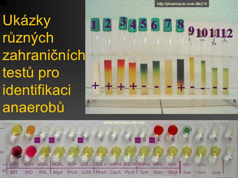 Ukázky různých zahraničních testů pro identifikaci anaerobů