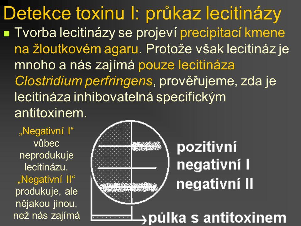 Detekce toxinu I: průkaz lecitinázy