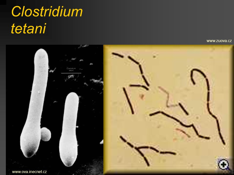 Clostridium tetani www.zuova.cz www.ova.inecnet.cz