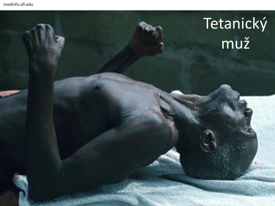 medinfo.ufl.edu Tetanický muž