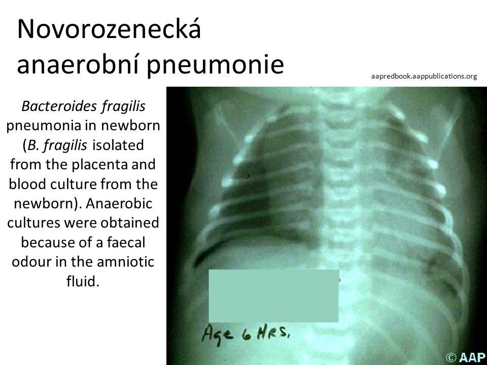 Novorozenecká anaerobní pneumonie