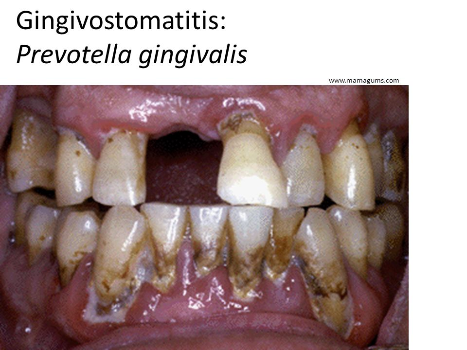 Gingivostomatitis: Prevotella gingivalis