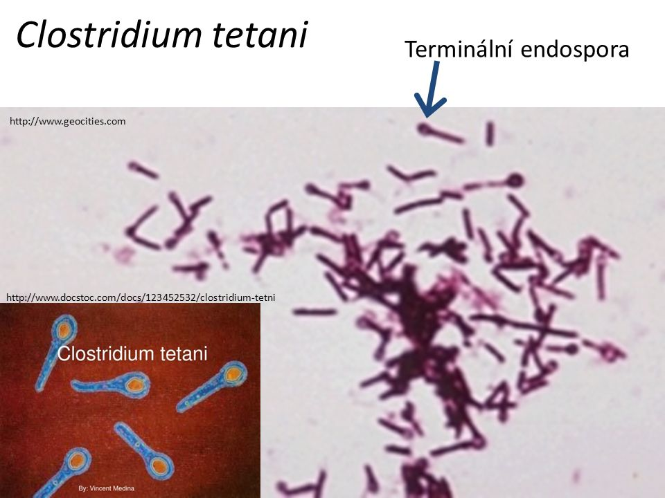 Clostridium tetani Terminální endospora http://www.geocities.com