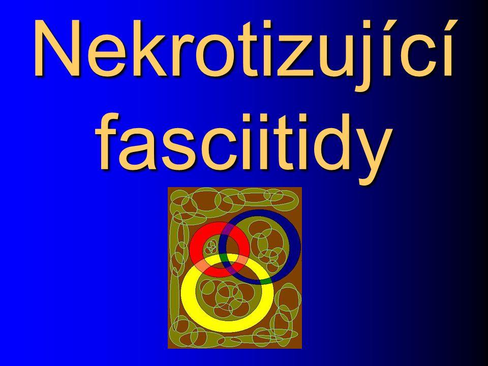 Nekrotizující fasciitidy