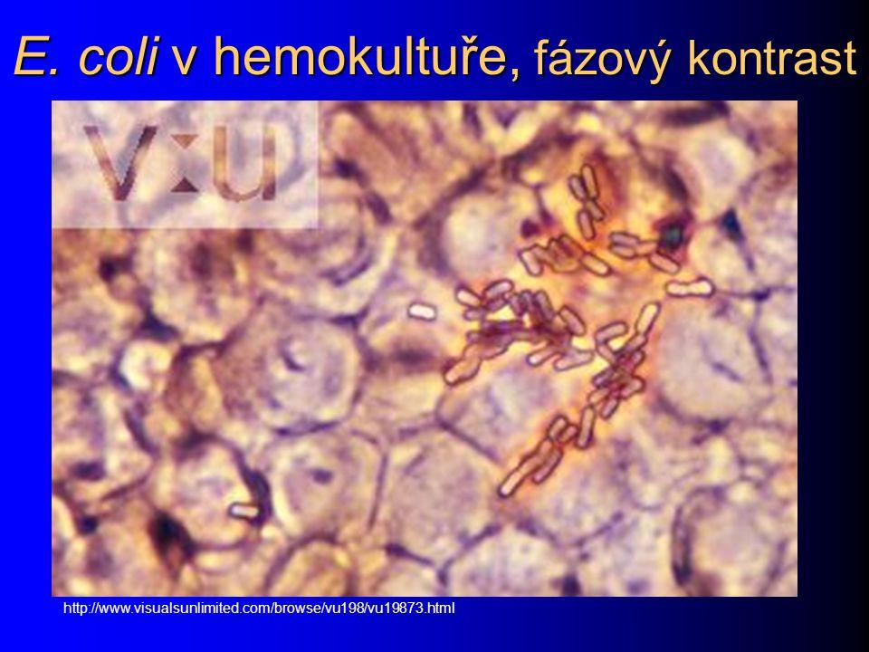 E. coli v hemokultuře, fázový kontrast