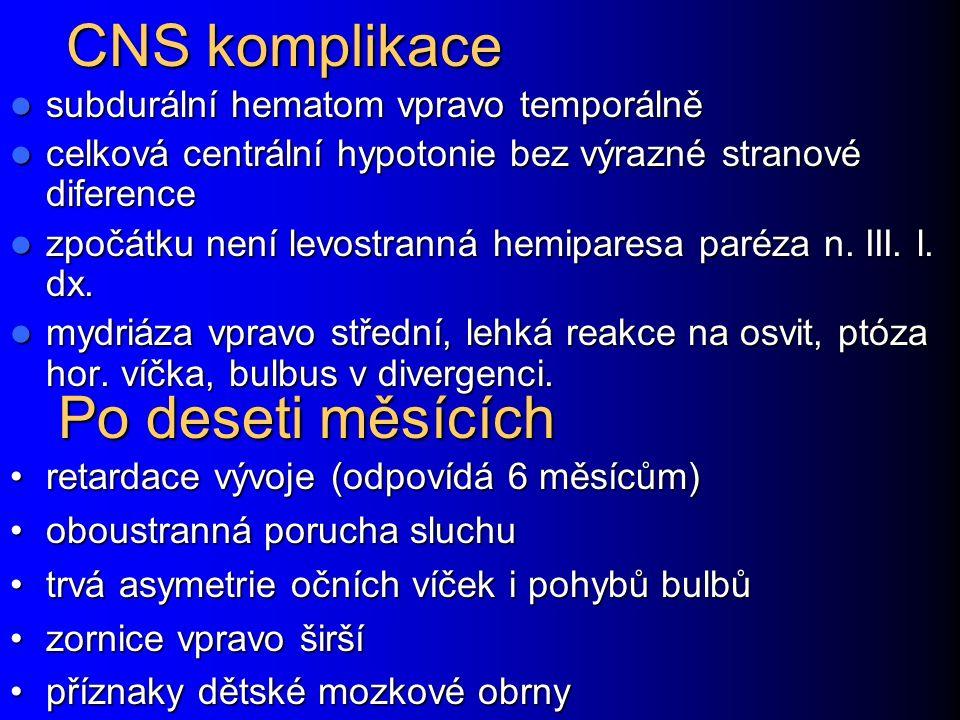 CNS komplikace Po deseti měsících subdurální hematom vpravo temporálně