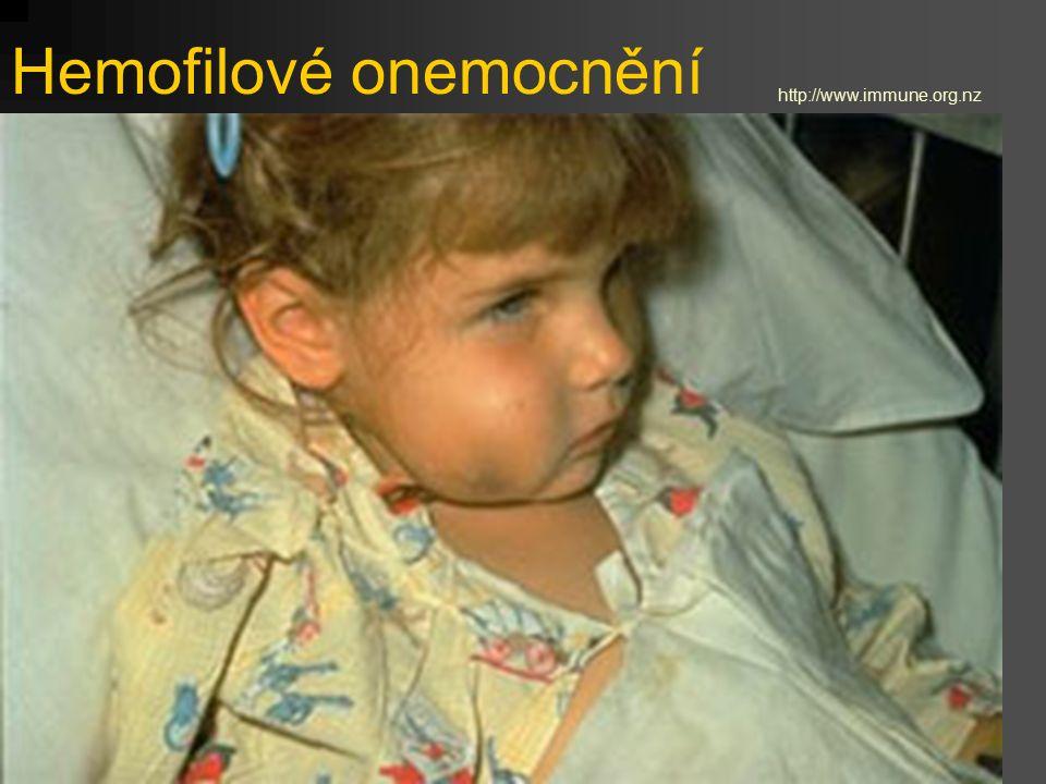 Hemofilové onemocnění