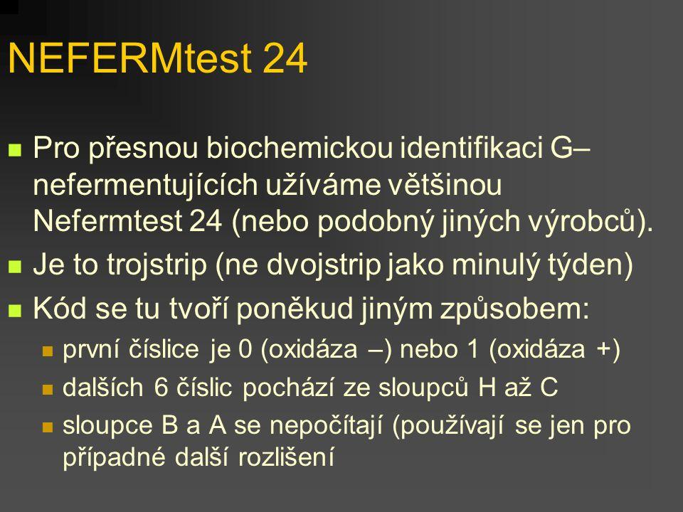 NEFERMtest 24 Pro přesnou biochemickou identifikaci G– nefermentujících užíváme většinou Nefermtest 24 (nebo podobný jiných výrobců).