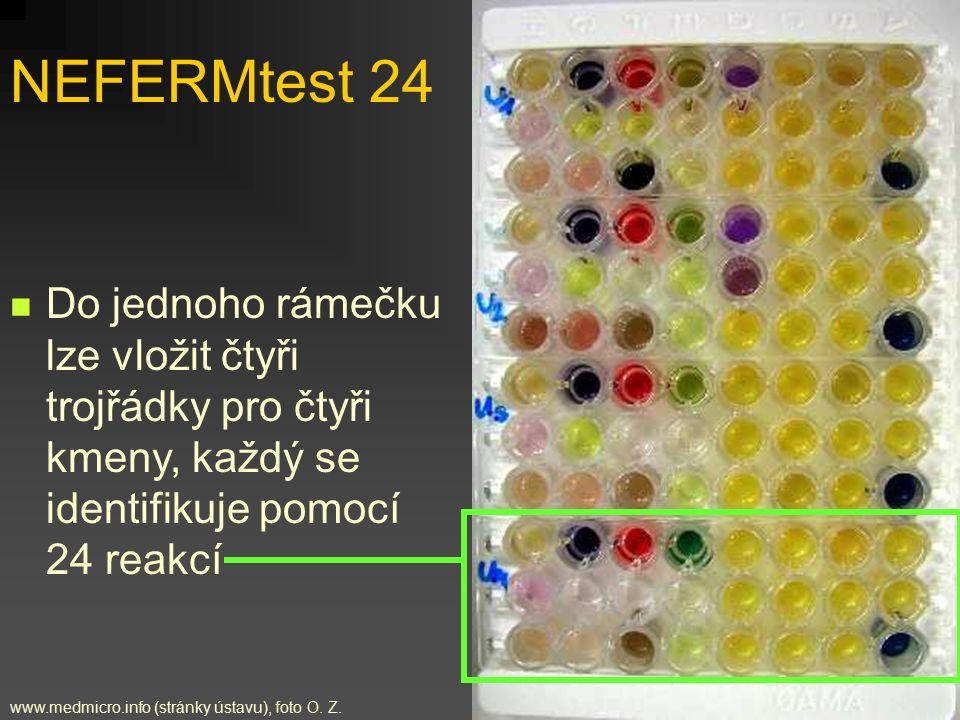 NEFERMtest 24 Do jednoho rámečku lze vložit čtyři trojřádky pro čtyři kmeny, každý se identifikuje pomocí 24 reakcí.