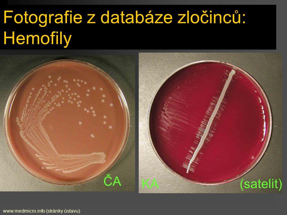 Fotografie z databáze zločinců: Hemofily