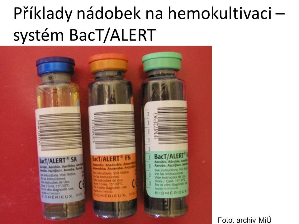 Příklady nádobek na hemokultivaci – systém BacT/ALERT