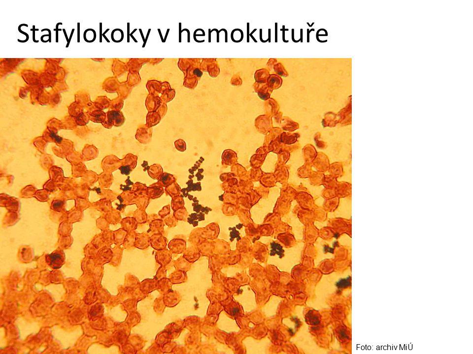 Stafylokoky v hemokultuře
