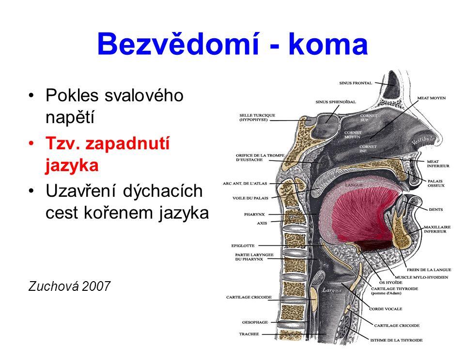 Bezvědomí - koma Pokles svalového napětí Tzv. zapadnutí jazyka