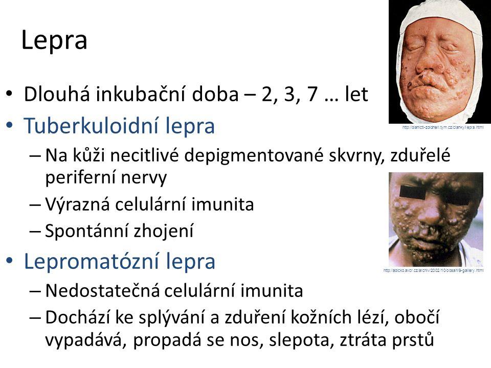 Lepra Tuberkuloidní lepra Lepromatózní lepra