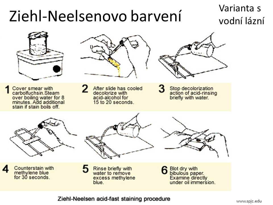 Ziehl-Neelsenovo barvení