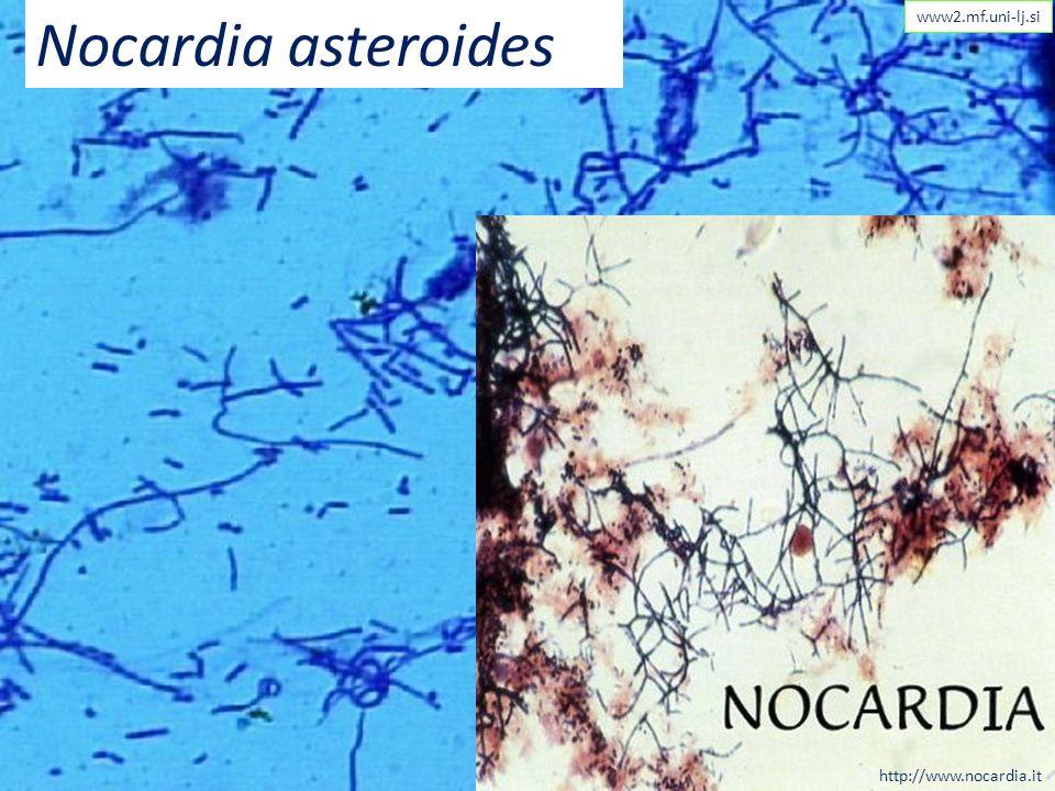 Nocardia asteroides www2.mf.uni-lj.si http://www.nocardia.it