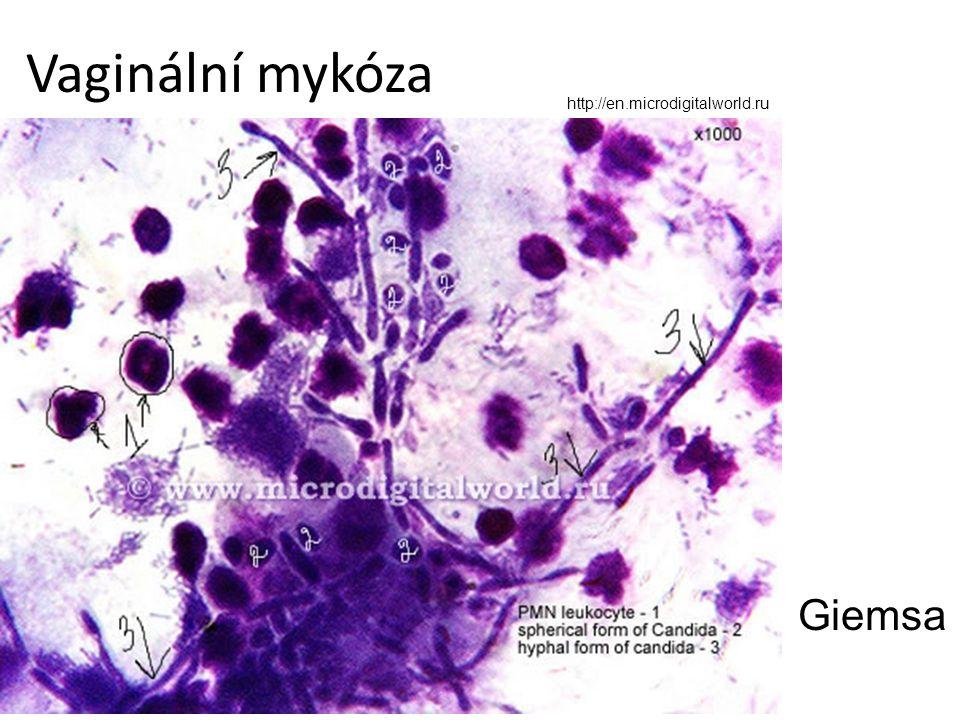 Vaginální mykóza http://en.microdigitalworld.ru Giemsa