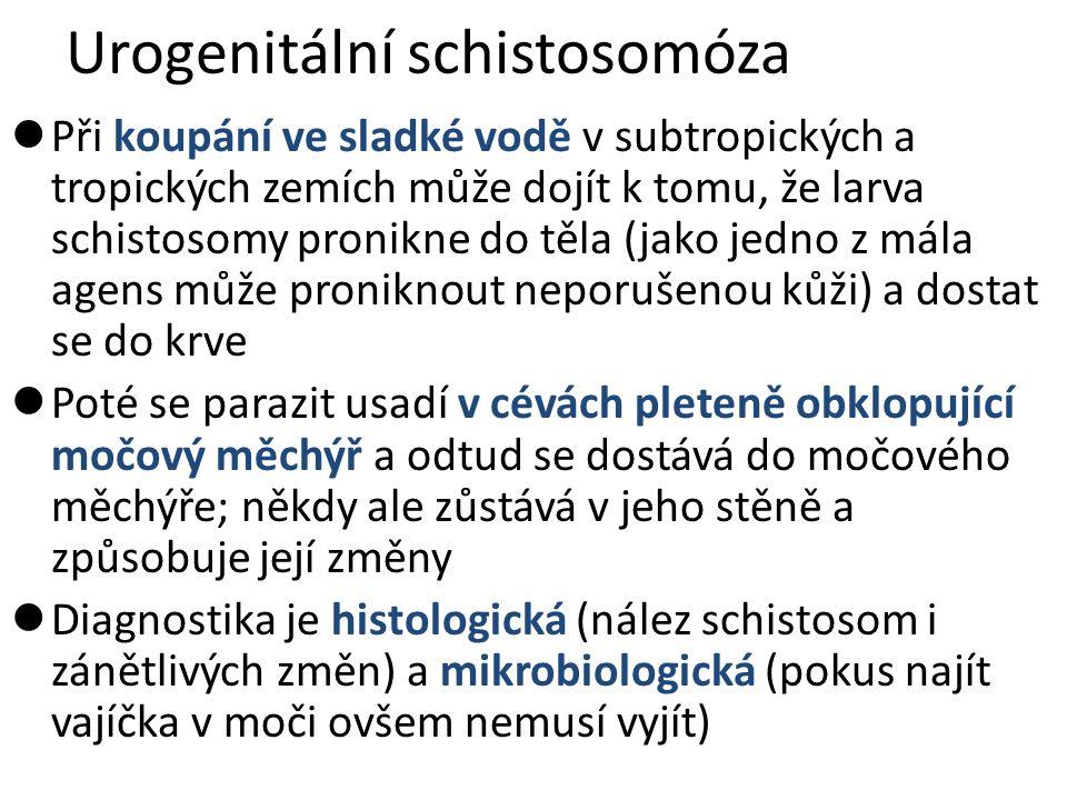 Urogenitální schistosomóza