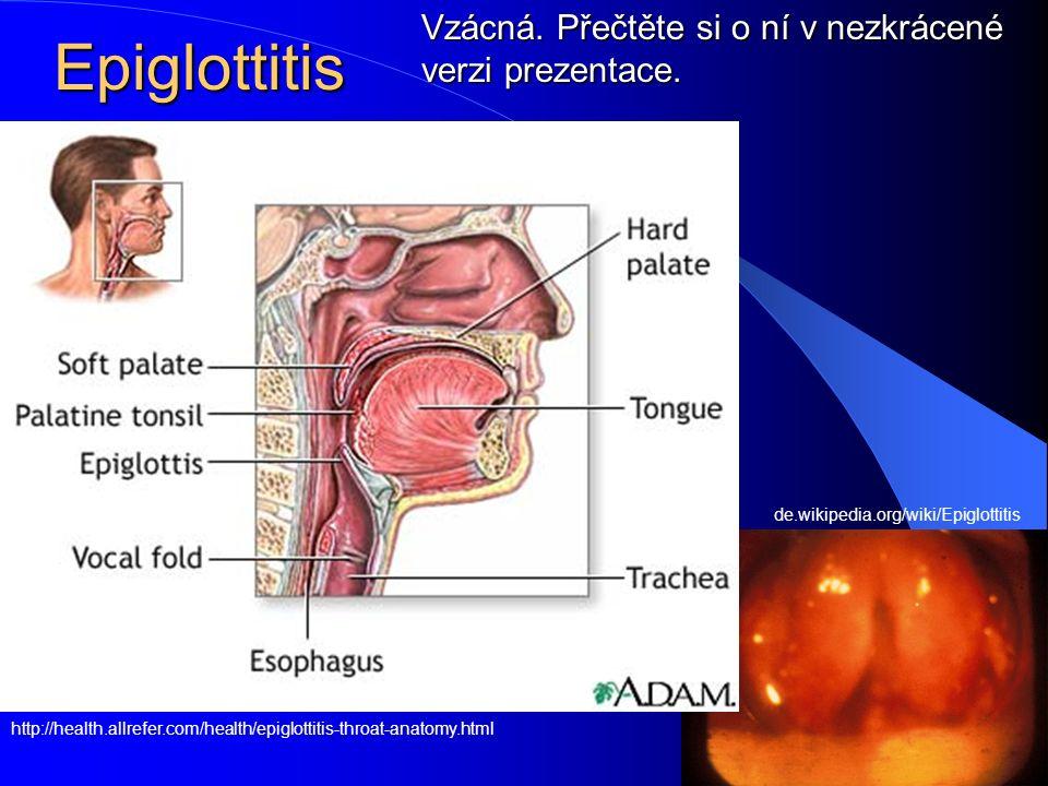 Epiglottitis Vzácná. Přečtěte si o ní v nezkrácené verzi prezentace.