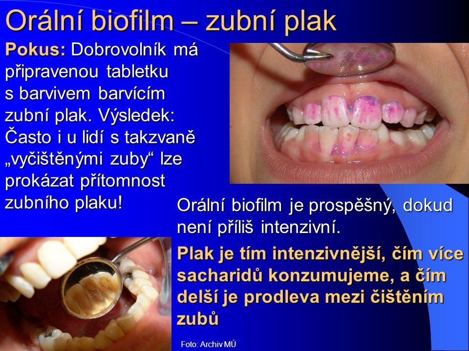 Orální biofilm – zubní plak