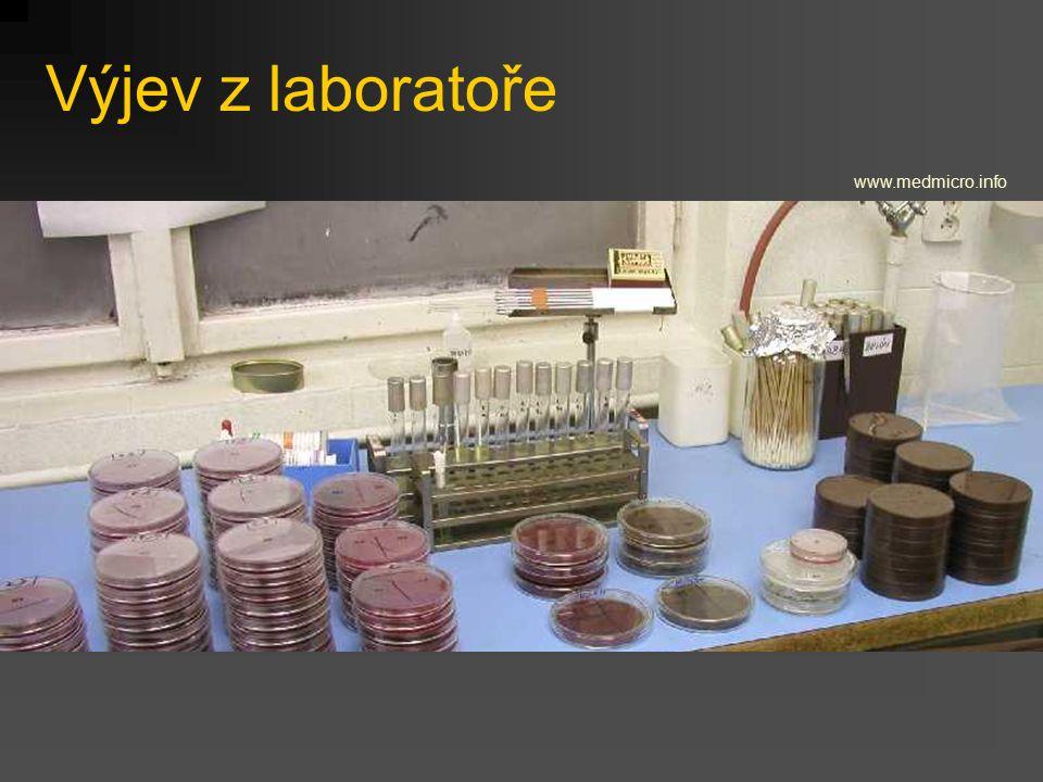 Výjev z laboratoře www.medmicro.info
