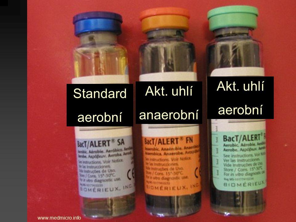 Akt. uhlí Akt. uhlí Standard aerobní anaerobní aerobní