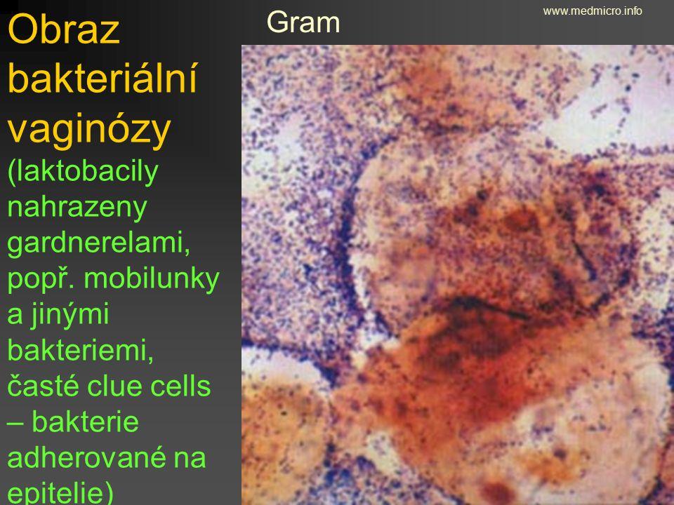 Obraz bakteriální vaginózy (laktobacily nahrazeny gardnerelami, popř