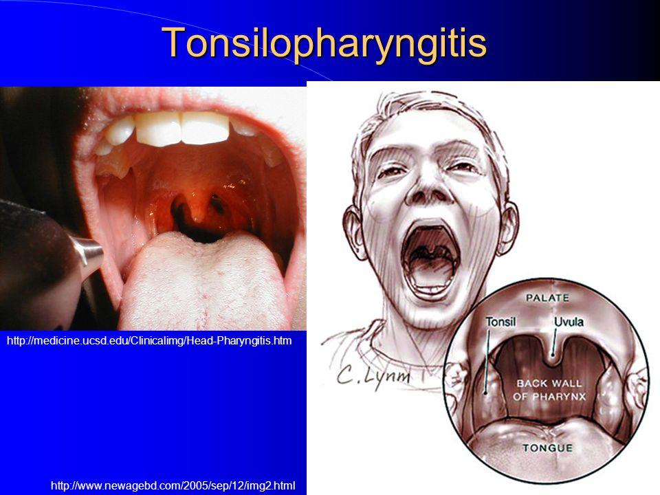 Tonsilopharyngitis http://medicine.ucsd.edu/Clinicalimg/Head-Pharyngitis.htm.