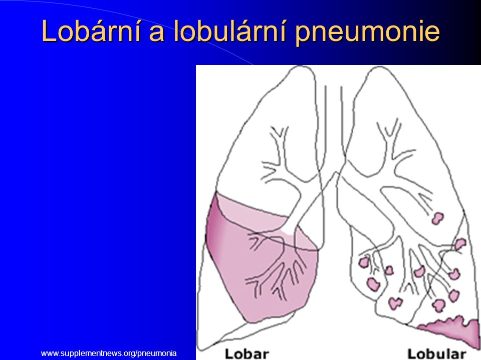 Lobární a lobulární pneumonie