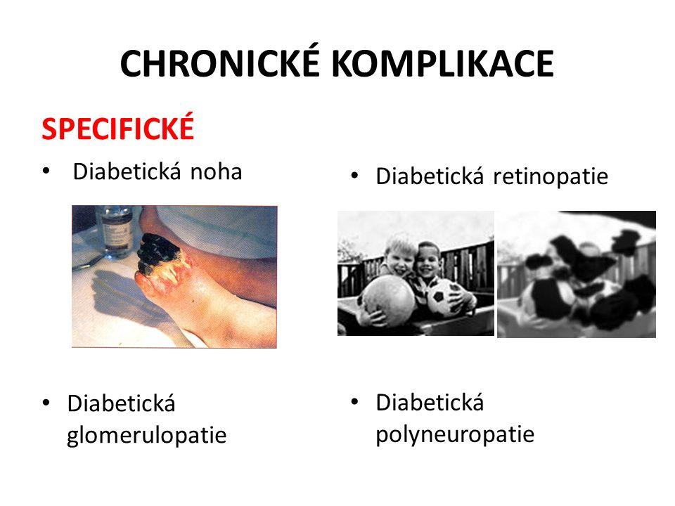 CHRONICKÉ KOMPLIKACE SPECIFICKÉ Diabetická noha Diabetická retinopatie