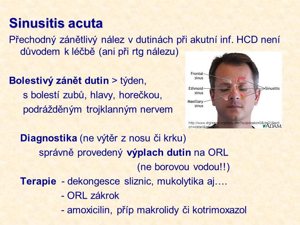 Sinusitis acuta Přechodný zánětlivý nález v dutinách při akutní inf. HCD není důvodem k léčbě (ani při rtg nálezu)