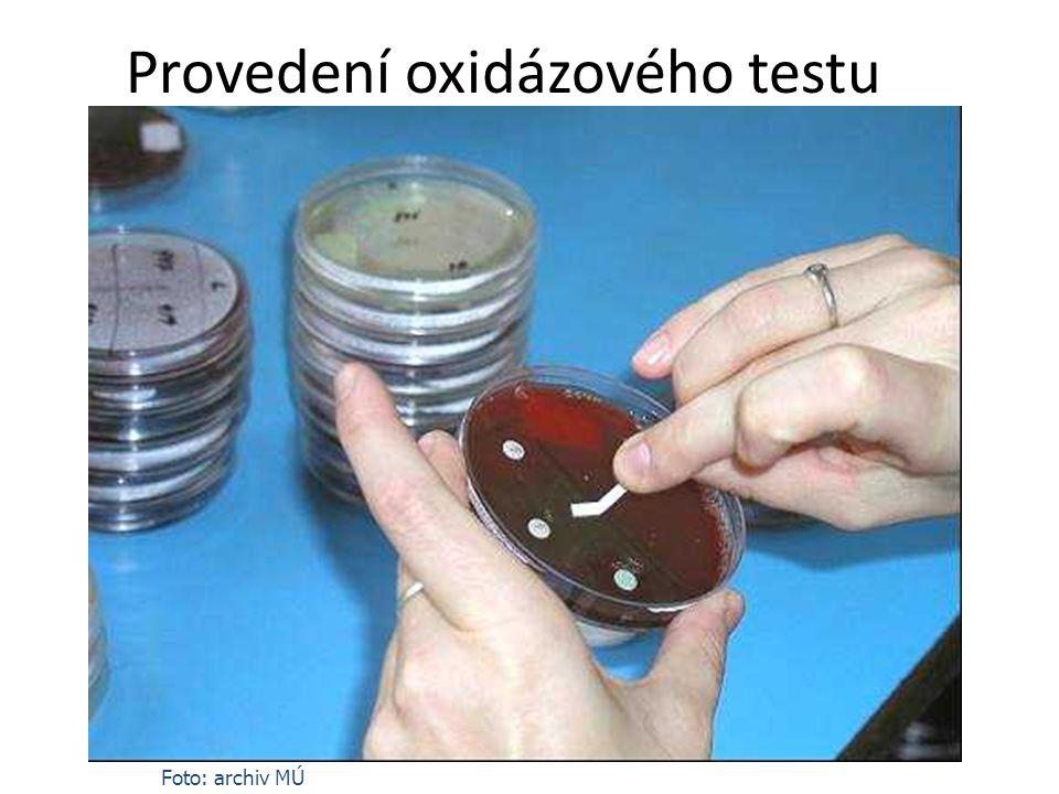 Provedení oxidázového testu