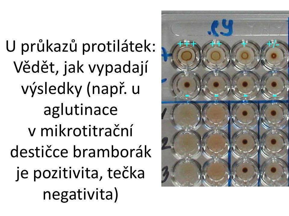 U průkazů protilátek: Vědět, jak vypadají výsledky (např