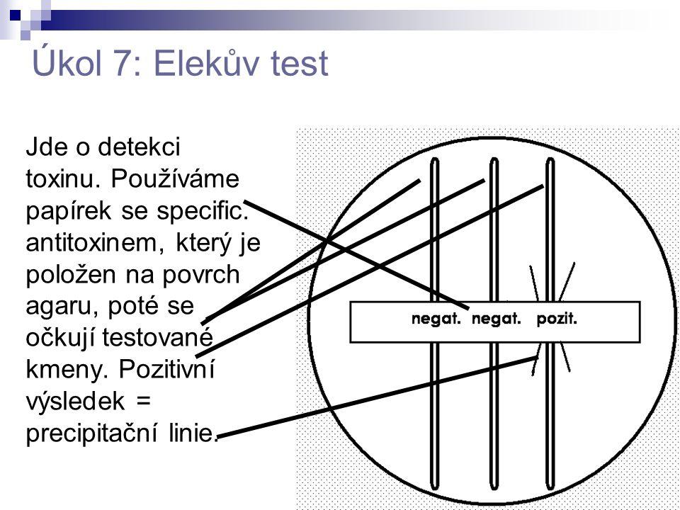 Úkol 7: Elekův test