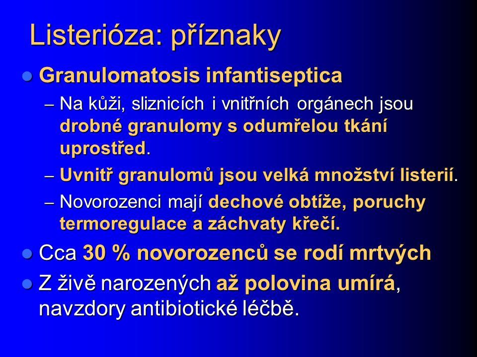 Listerióza: příznaky Granulomatosis infantiseptica