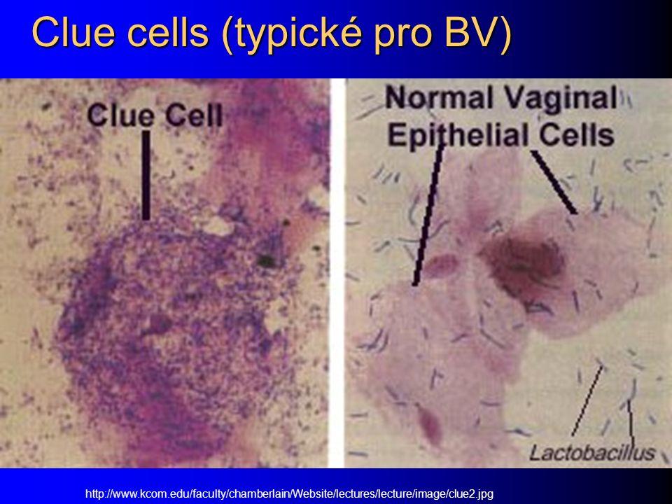 Clue cells (typické pro BV)