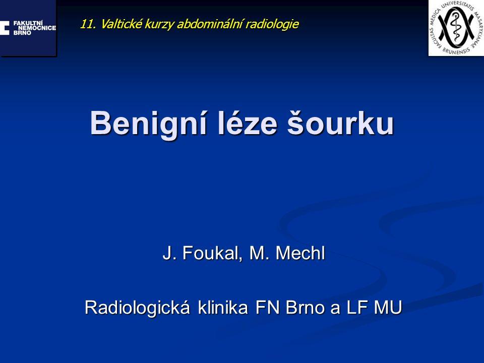 J. Foukal, M. Mechl Radiologická klinika FN Brno a LF MU
