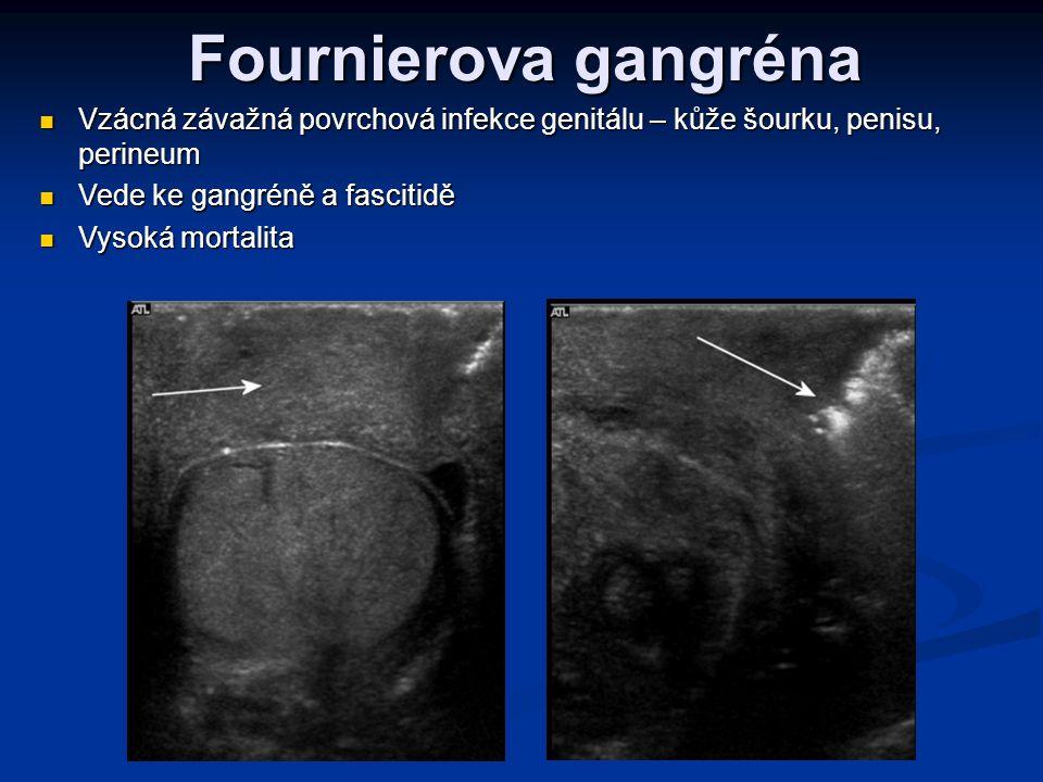 Fournierova gangréna Vzácná závažná povrchová infekce genitálu – kůže šourku, penisu, perineum. Vede ke gangréně a fascitidě.