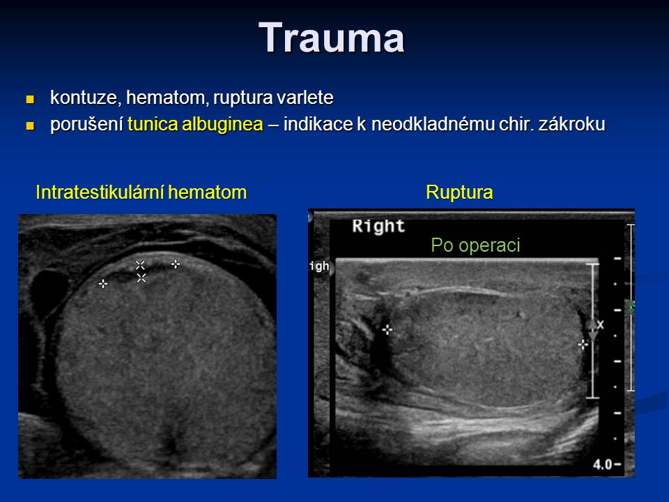 Trauma kontuze, hematom, ruptura varlete