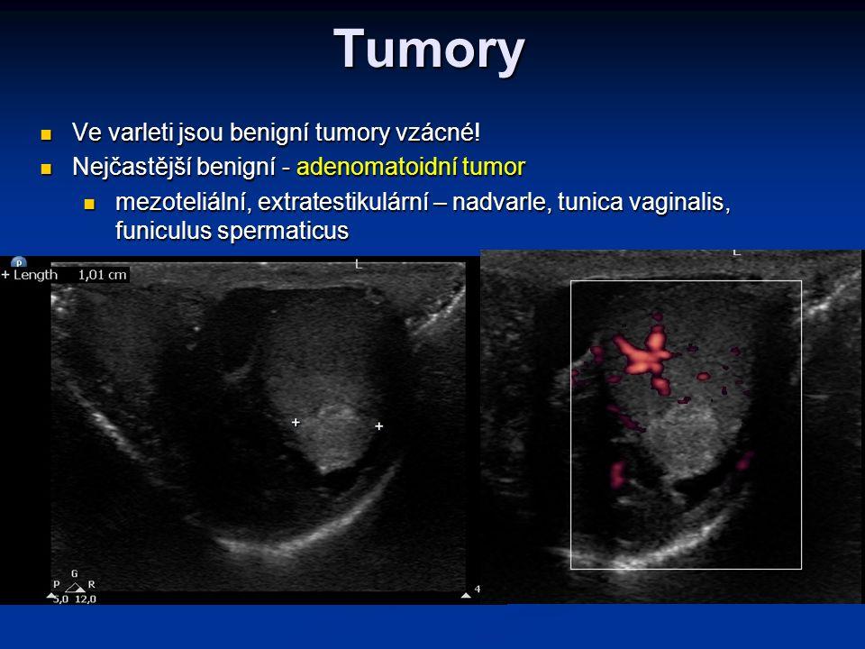 Tumory Ve varleti jsou benigní tumory vzácné!