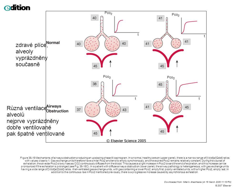 zdravé plíce, alveoly vyprázdněny současně