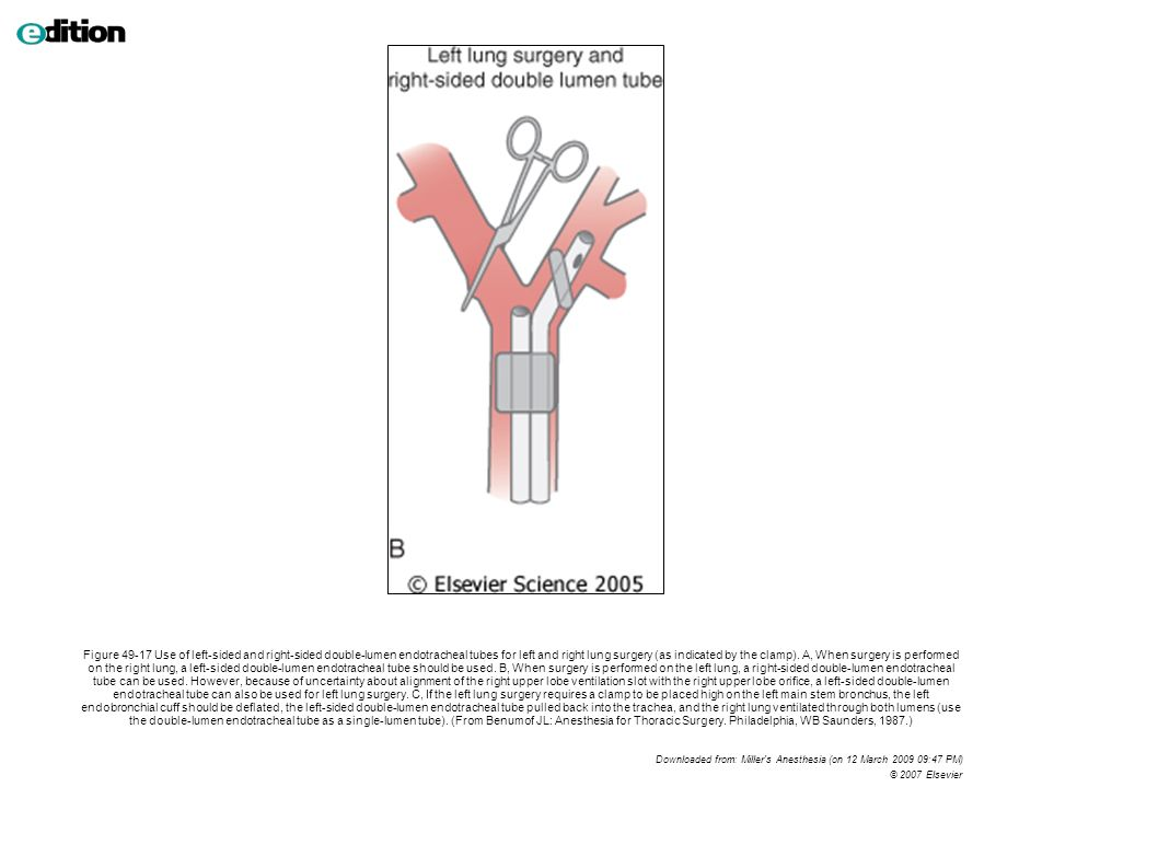 Figure 49-17 Use of left-sided and right-sided double-lumen endotracheal tubes for left and right lung surgery (as indicated by the clamp). A, When surgery is performed on the right lung, a left-sided double-lumen endotracheal tube should be used. B, When surgery is performed on the left lung, a right-sided double-lumen endotracheal tube can be used. However, because of uncertainty about alignment of the right upper lobe ventilation slot with the right upper lobe orifice, a left-sided double-lumen endotracheal tube can also be used for left lung surgery. C, If the left lung surgery requires a clamp to be placed high on the left main stem bronchus, the left endobronchial cuff should be deflated, the left-sided double-lumen endotracheal tube pulled back into the trachea, and the right lung ventilated through both lumens (use the double-lumen endotracheal tube as a single-lumen tube). (From Benumof JL: Anesthesia for Thoracic Surgery. Philadelphia, WB Saunders, 1987.)
