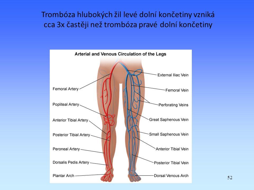 Trombóza hlubokých žil levé dolní končetiny vzniká cca 3x častěji než trombóza pravé dolní končetiny
