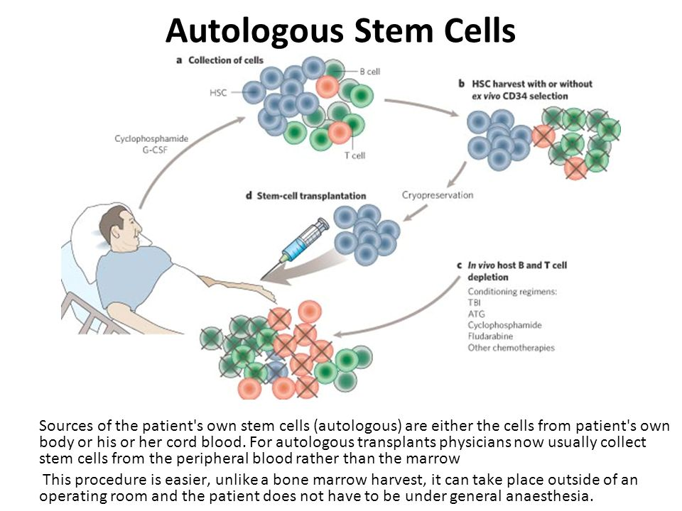 Autologous Stem Cells