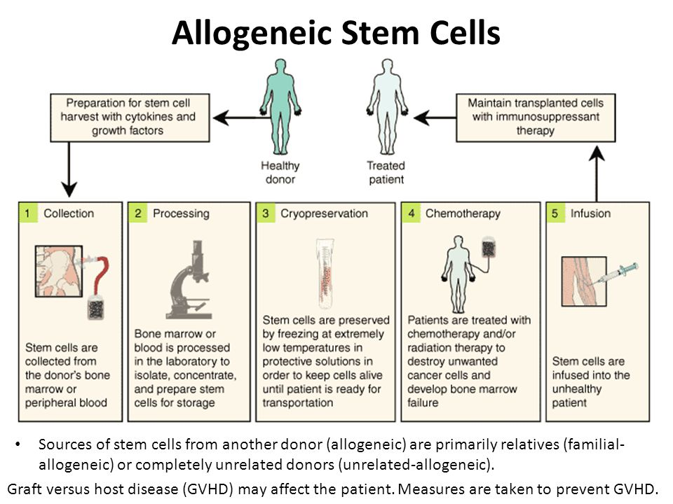 Allogeneic Stem Cells