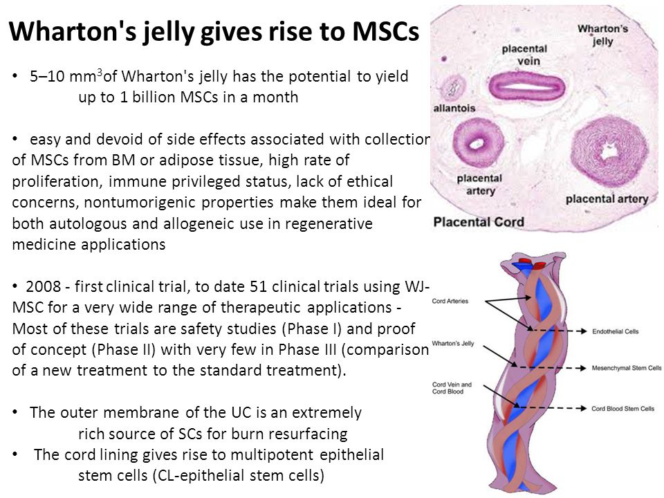 Wharton s jelly gives rise to MSCs